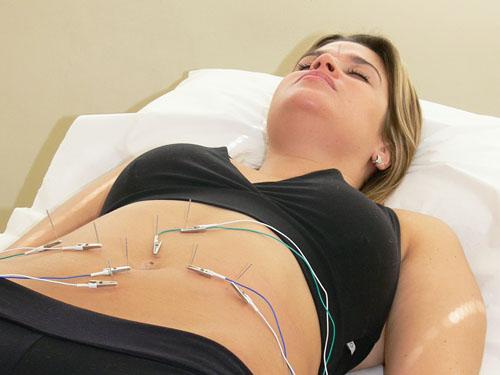 Acupuntura estética - Alefisio Fisioterapia